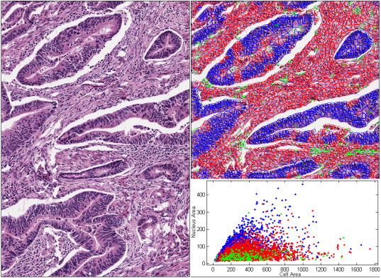 automatic cell clustering in tissue SMALL