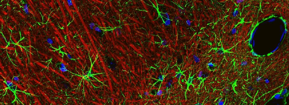 brain-tissue-astroglia-neurones-segmentation-quantacell