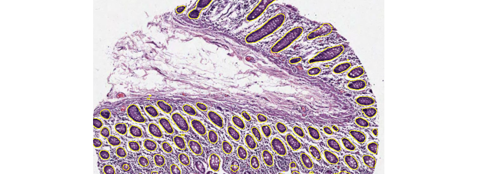 tissue-small-intestine-segmentation-cell-IHC-quantacell-2