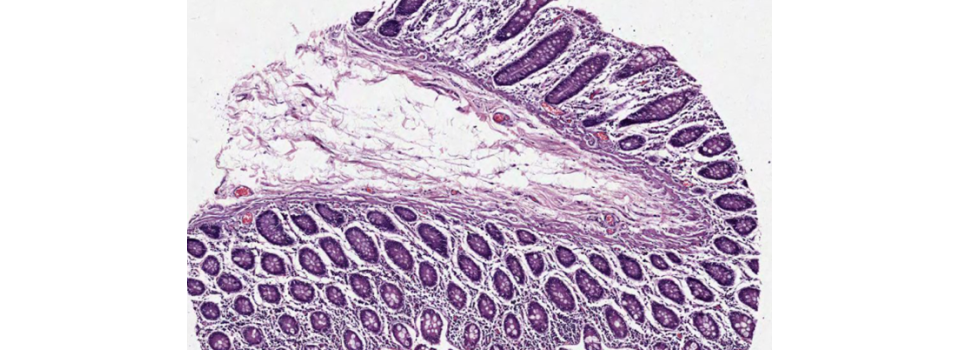 tissue-small-intestine-segmentation-cell-IHC-quantacell