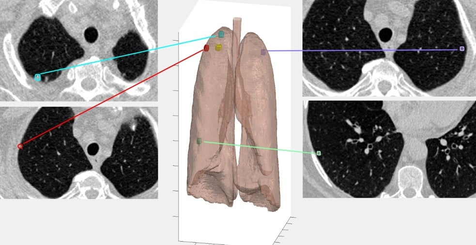 nodule detection cancer quantacell JRF SFR