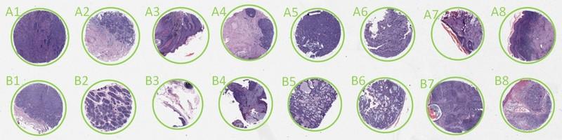 TMA analysis, tissue micro array