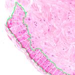 skin segmentation width estimation